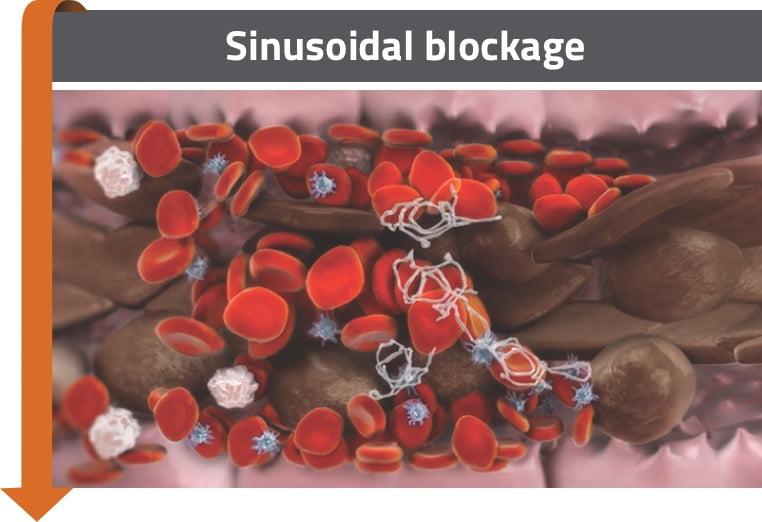 Sinusoidal blockage
