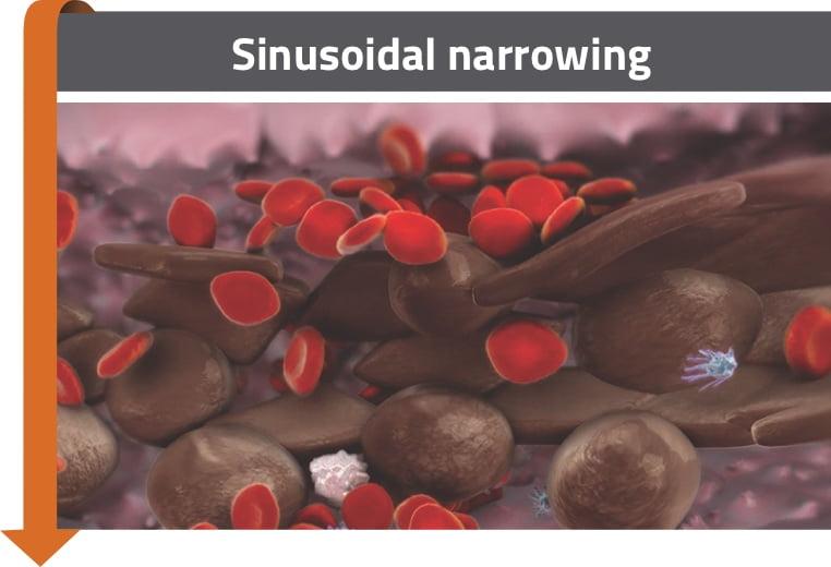 Sinusoidal narrowing